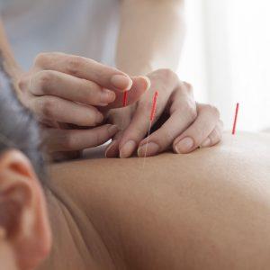 Acupuncture Services | Acupuncture Therapeutics in Pasadena, CA